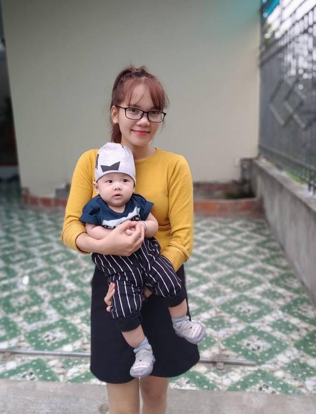 4 tháng sau tiêm phòng, mẹ tá hỏa nhìn thấy hạch mưng mủ, phải đưa con đi phẫu thuật gấp và những kinh nghiệm sâu sắc gửi đến các mẹ khác - Ảnh 1.