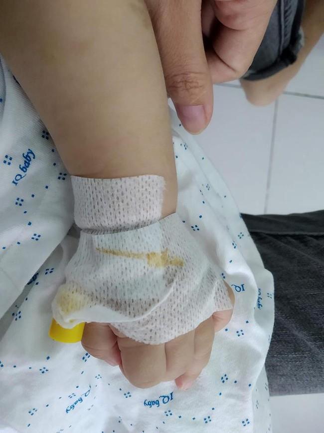 4 tháng sau tiêm phòng, mẹ tá hỏa nhìn thấy hạch mưng mủ, phải đưa con đi phẫu thuật gấp và những kinh nghiệm sâu sắc gửi đến các mẹ khác - Ảnh 4.