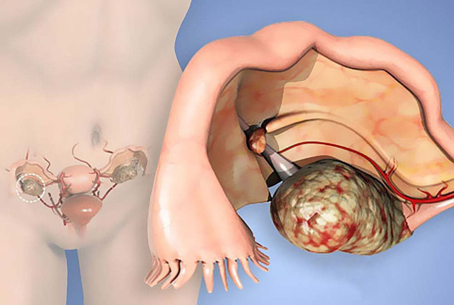 Những căn bệnh ở buồng trứng dễ gây vô sinh, hiếm muộn mà phái nữ cần nắm rõ - Ảnh 3.