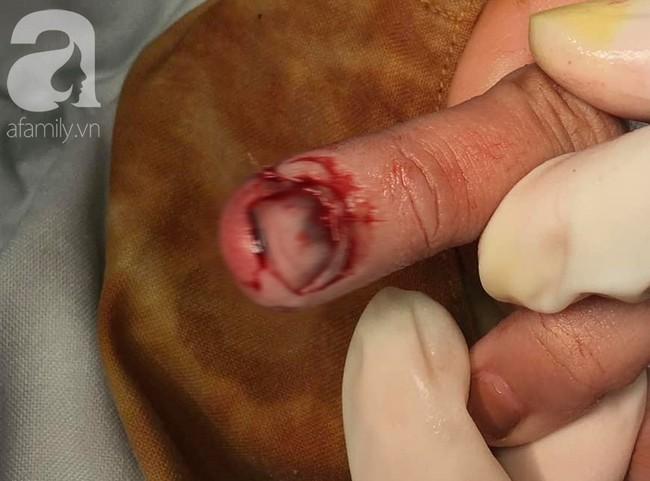 Tai nạn nguy hiểm: Bé gái 8 tuổi bị kẹt cửa làm dập nát, suýt mất đầu ngón tay khi chơi đùa tại nhà - Ảnh 2.