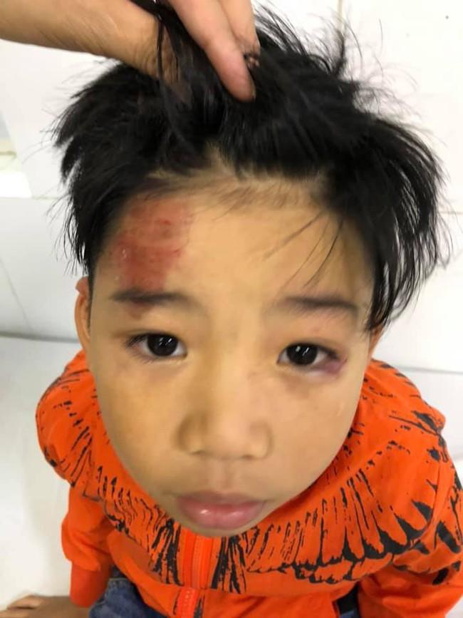 Hai con nhỏ của siêu mẫu Hạ Vy bị xe điên tông chấn thương não rồi bỏ chạy - Ảnh 1.