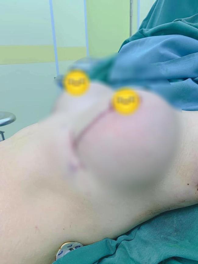 Bức ảnh bộ ngực chảy xệ vì sinh con xuất hiện đúng Ngày của mẹ khiến hội chị em xót xa, vài giờ sau đó có điều gây bất ngờ - Ảnh 3.
