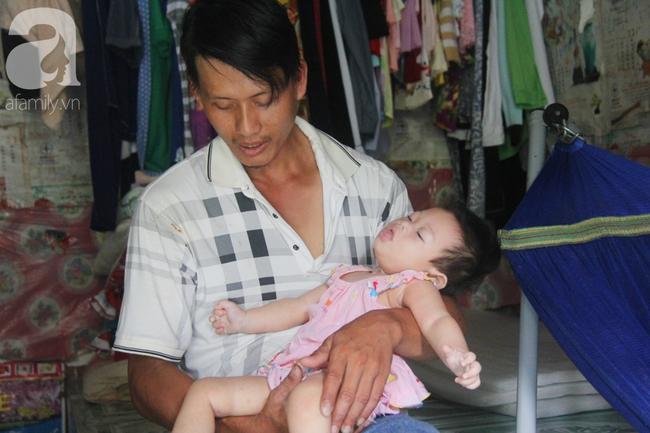 Bé gái 1 tuổi co giật liên tục đến mức méo miệng, bố mẹ nghèo bật khóc khi đã có tiền chữa bệnh cho con - Ảnh 14.