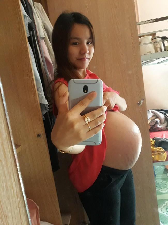 Sau sinh bụng rạn toe toét, mẹ 9x quyết tâm làm điều này và sau 2 tháng bụng đã bật tông trắng sáng mịn màng - Ảnh 2.