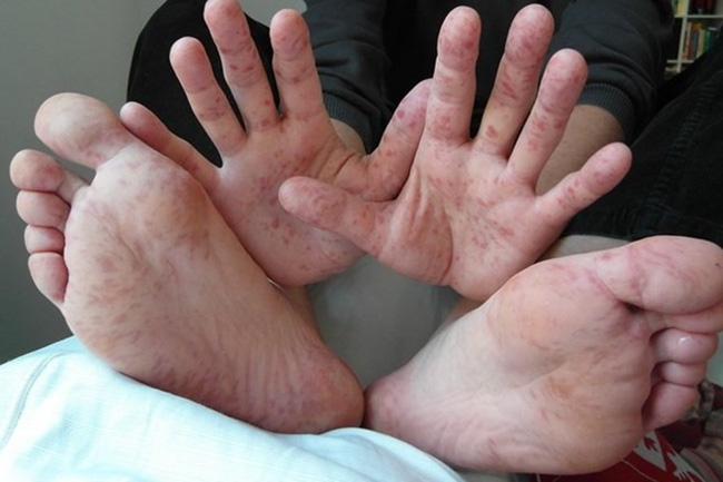 Cha mẹ cảnh giác với 3 dấu hiệu cảnh báo trẻ bị tay chân miệng thể nặng, ảnh hưởng đến thần kinh - Ảnh 1.