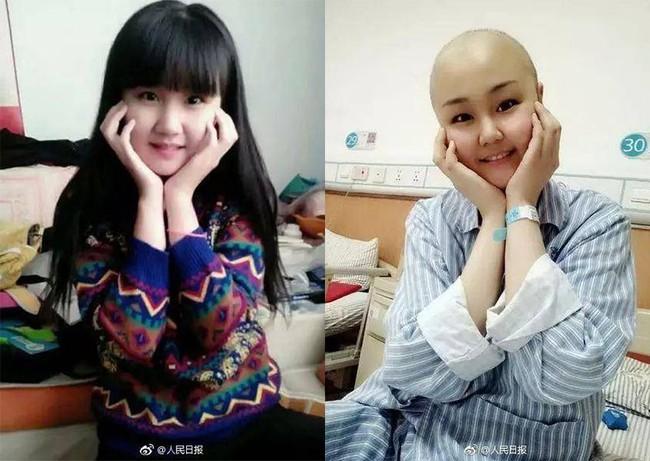 21 tuổi, bị ung thư máu, 3 năm tái phát 3 lần nhưng cô gái không gục ngã, hàng ngày vẫn làm một việc để động viên người cùng hoàn cảnh - Ảnh 1.