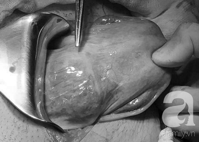 Người phụ nữ 29 tuổi, trải qua 5 lần sinh đẻ, đến lần thứ 6 thì suýt mất mạng vì thai bám sẹo cũ - Ảnh 3.