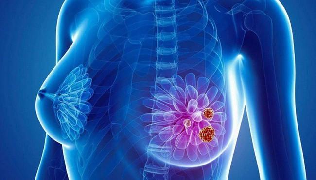 Tưởng đâu chỉ là 1 cơn đau bình thường, hóa ra tôi đã mắc phải ung thư vú giai đoạn 4 - Ảnh 1.