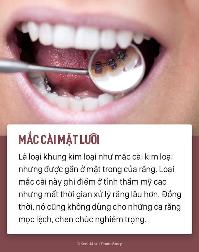 Chỉ là niềng răng thôi mà cũng có rất nhiều phương pháp, loại hình khác nhau để các bạn lựa chọn - Ảnh 7.