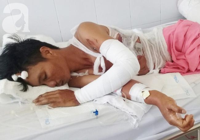 Vừa chịu tang mẹ chồng, người vợ đau đớn khi chồng lại bị điện giật bỏng nặng trong lúc làm thuê nuôi 2 con nhỏ - Ảnh 7.