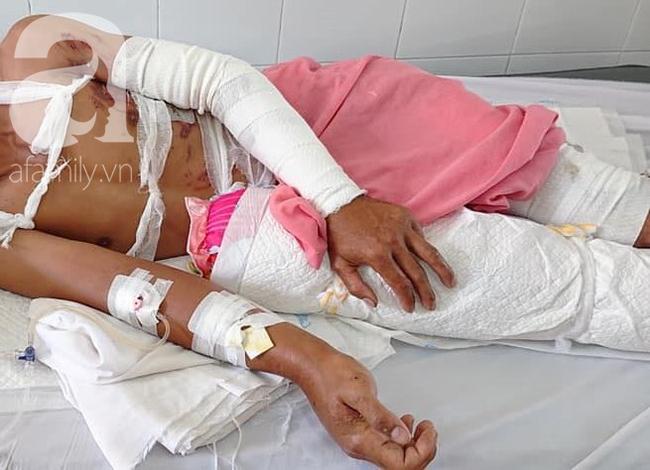 Vừa chịu tang mẹ chồng, người vợ đau đớn khi chồng lại bị điện giật bỏng nặng trong lúc làm thuê nuôi 2 con nhỏ - Ảnh 5.