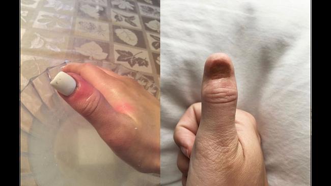 Ung thư da đang mon men tìm đến bạn qua dấu hiệu này trên móng tay, nghe chia sẻ của cô gái này để tránh hậu quả đáng tiếc - Ảnh 2.