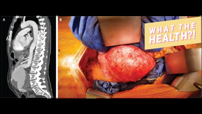 Đầy hơi, táo bón liên tục có thể là dấu hiệu bạn mắc chứng bệnh dễ gây tử vong - Ảnh 1.