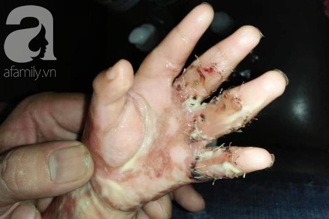Tai nạn nguy hiểm: Bé gái 8 tuổi bị kẹt cửa làm dập nát, suýt mất đầu ngón tay khi chơi đùa tại nhà - Ảnh 3.