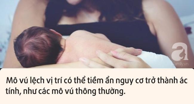 tiet-sua-3