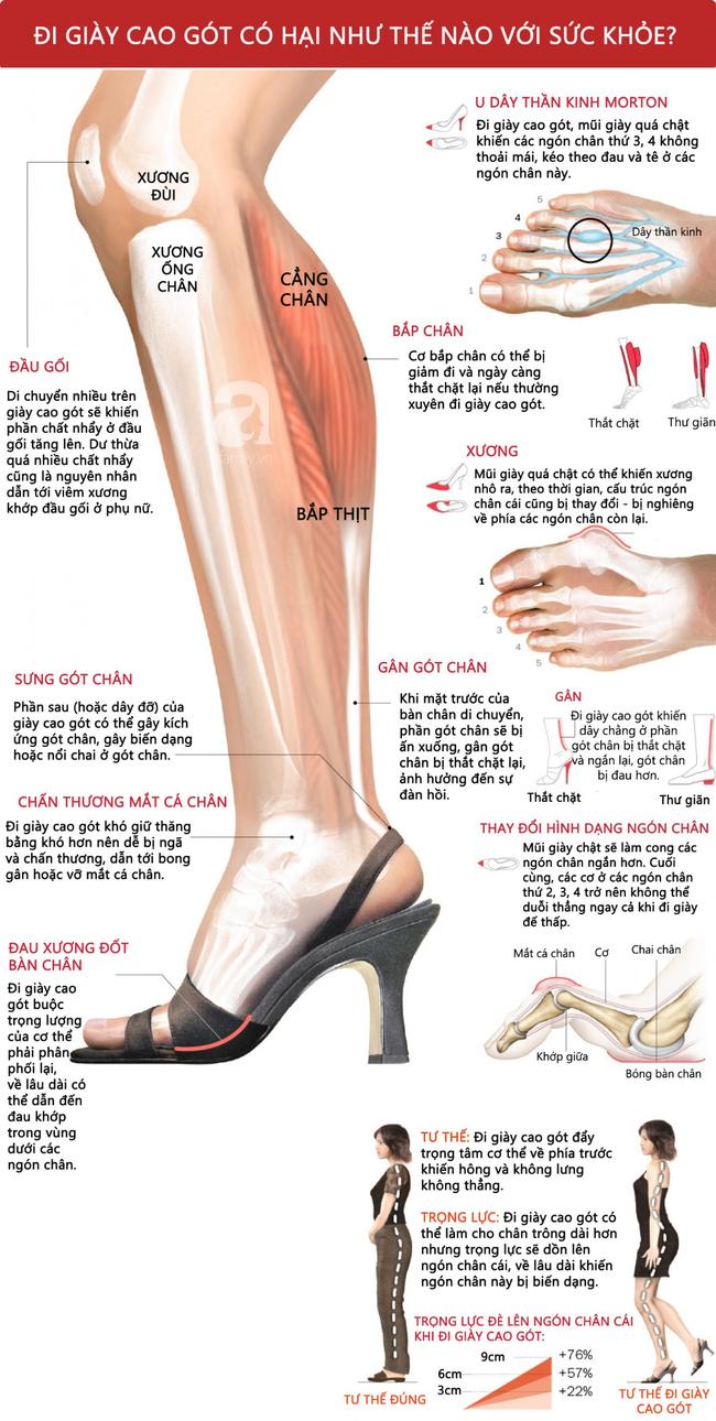 """Phong trào #KuToo: Đi giày cao gót có hại đến thế nào mà khiến chị em công sở lại """"dậy sóng"""" phản đối thế này? - Ảnh 3."""
