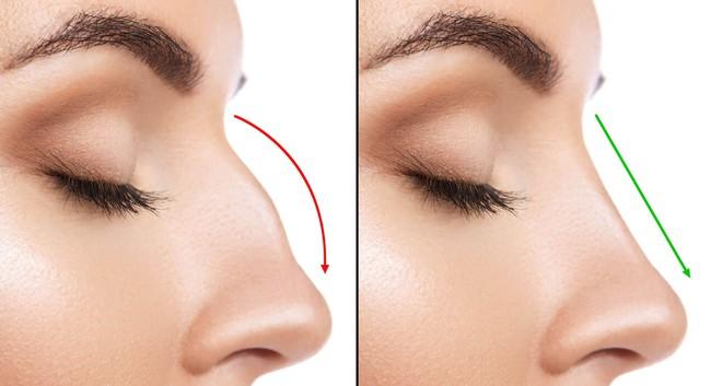 Tiêm chất làm đầy để nâng mũi, vừa kết thúc thủ thuật cô gái 19 tuổi lập tức bị mù 1 bên mắt - Ảnh 4.
