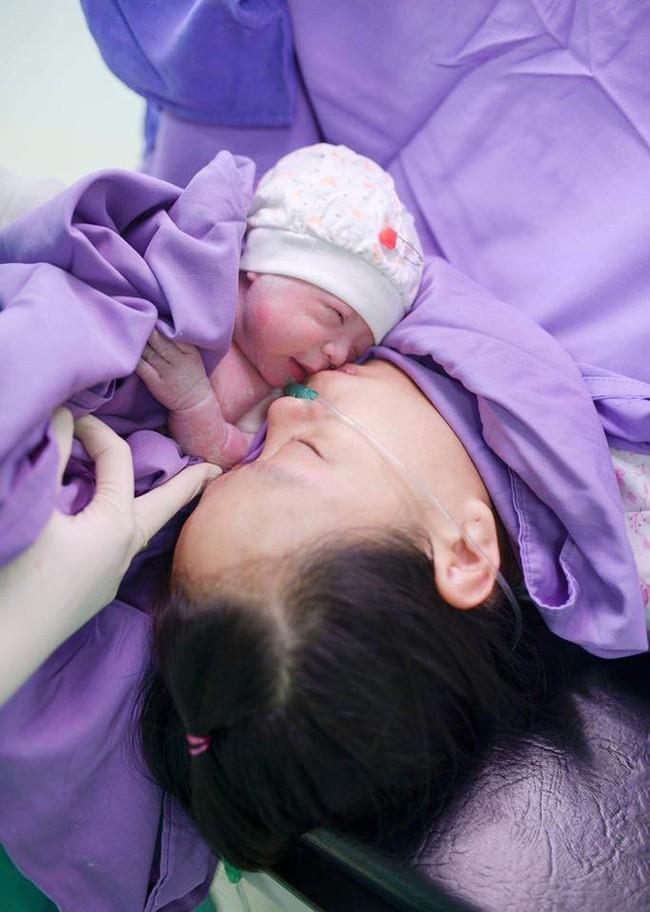 Ca sinh hiếm gặp cặp bé gái sinh đôi chào đời còn giữ nguyên cả bọc ối khi ra khỏi bụng mẹ - Ảnh 4.