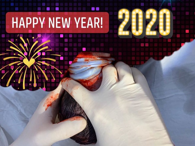 Niềm vui đầu năm 2020: Em bé chào đời an toàn dù bị dây rốn quấn 3 vòng quanh cổ - Ảnh 1.