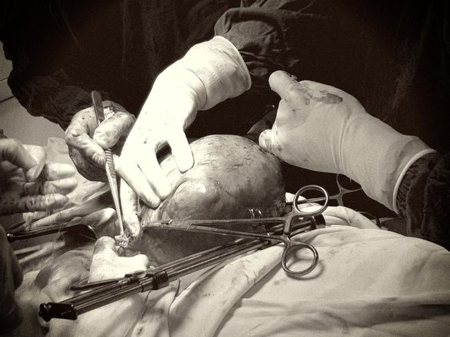 Cắt khối u xơ tử cung khổng lồ cho bệnh nhân nữ có tiền sử tim mạch ngoại tâm thu thất khá hiếm gặp - Ảnh 1.