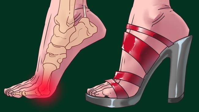 """Giày cao gót chị em mê mẩn không chỉ hại bàn chân mà còn là """"chất độc"""" phá hỏng 3 bộ phận này trước khi kịp nhận ra - Ảnh 2."""