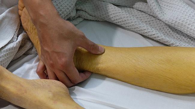 Ung thư tuyến tụy nguy hiểm cỡ nào cũng hiện rõ 9 dấu hiệu này trên da, chị em cần nắm ngay kẻo hối không kịp - Ảnh 2.