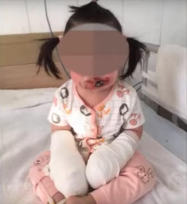 Bé gái 2 tuổi bị bỏng cấp độ 4 ở tay và mặt vì bị điện giật bởi một vật mà ít ai ngờ tới - Ảnh 1.