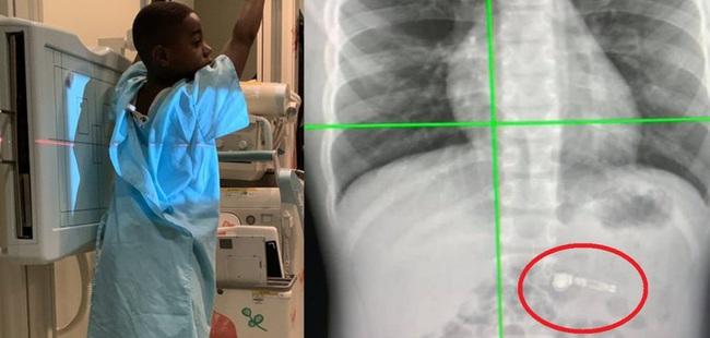 Cậu bé nhập viện vì nuốt phải tai nghe AirPods, nghe cách xử lý của bác sĩ mà ai cũng phì cười - Ảnh 2.