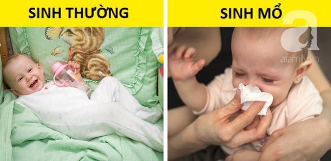 Sinh mổ và toàn bộ những kiến thức cơ bản mẹ cần biết về cuộc đại phẫu: nhiễm trùng, đau đớn, chậm sữa - Ảnh 8.
