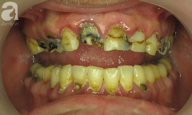 Liên tục uống loại nước phổ biến này mỗi ngày, người đàn ông bị biến dạng nặng nề cả 2 hàm răng - Ảnh 3.