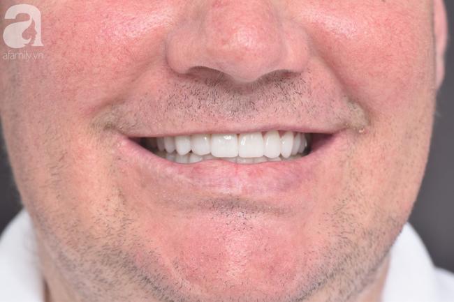 Liên tục uống loại nước phổ biến này mỗi ngày, người đàn ông bị biến dạng nặng nề cả 2 hàm răng - Ảnh 2.