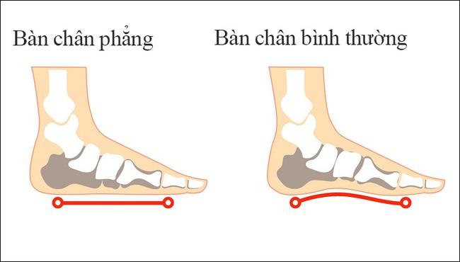Chân cong sinh lý là hiện tượng bình thường ở trẻ sơ sinh, nhưng cha mẹ cũng nên lưu ý bởi nó cũng có thể là dấu hiệu của một bệnh lý tiềm ẩn - Ảnh 2.