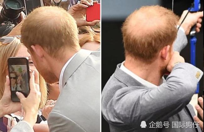 Hoàng tử Harry phải đi trị rụng tóc vì mảng hói trên đầu to gấp đôi kể từ khi cưới Meghan Markle  - Ảnh 1.