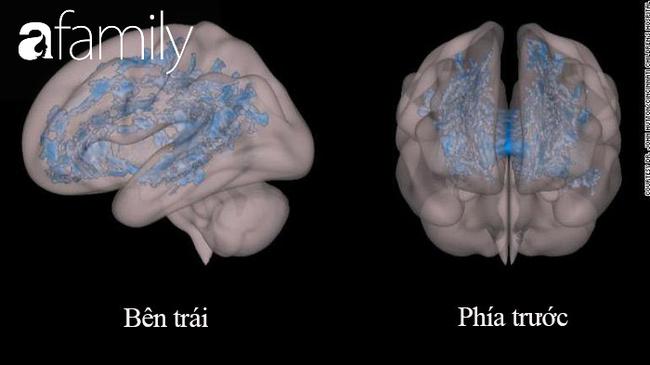 Nhìn kết quả MRIs não bộ của hai đứa trẻ: thường xuyên đọc sách và thường xuyên xem điện thoại, cha mẹ sẽ biết mình nên làm gì với con - Ảnh 2.
