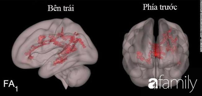 Nhìn kết quả MRIs não bộ của hai đứa trẻ: thường xuyên đọc sách và thường xuyên xem điện thoại, cha mẹ sẽ biết mình nên làm gì với con - Ảnh 1.