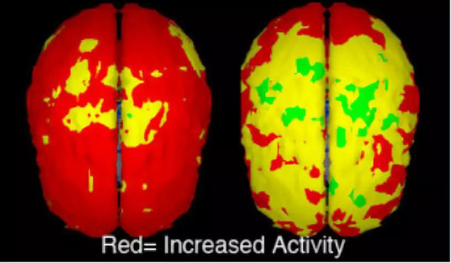 """""""Thuốc thông minh"""": Là viên tiên dược giúp bộ não phát triển hay chỉ là một liều thuốc phiện độc hại về sau - Ảnh 4."""