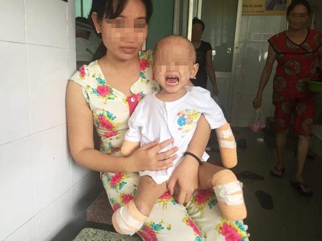 TP.HCM: Xót xa bé gái 2 tuổi bị đoạn tứ chi vì viêm não mô cầu - Ảnh 1.