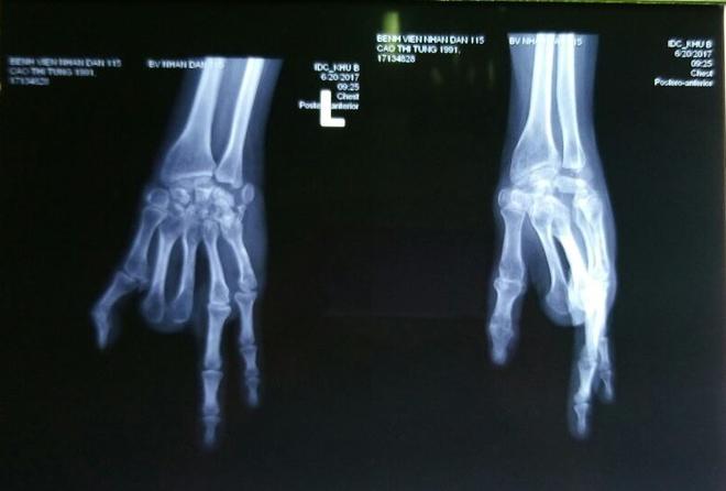 """Sau 7 năm, cô gái 26 tuổi """"tìm lại"""" hai ngón tay đã mất từ… bàn chân - Ảnh 1."""