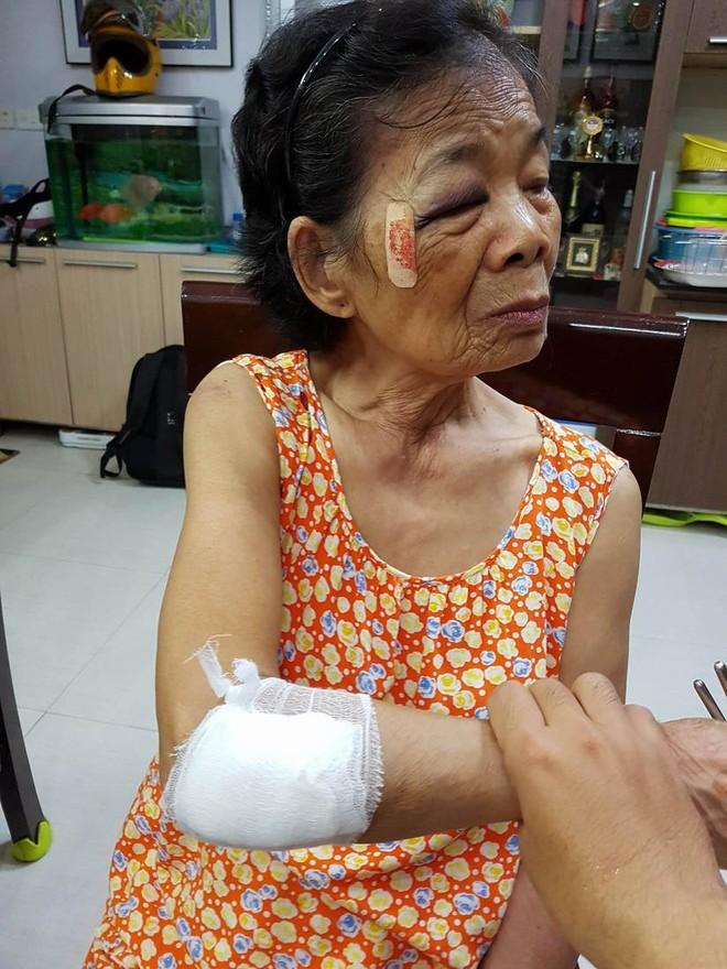 Hà Nội: Tài xế va chạm với cụ bà sau đó lấy lý do lùi xe rồi bỏ chạy - Ảnh 2.