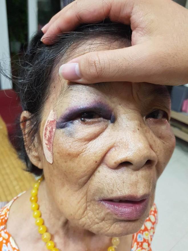 Hà Nội: Tài xế va chạm với cụ bà sau đó lấy lý do lùi xe rồi bỏ chạy - Ảnh 3.