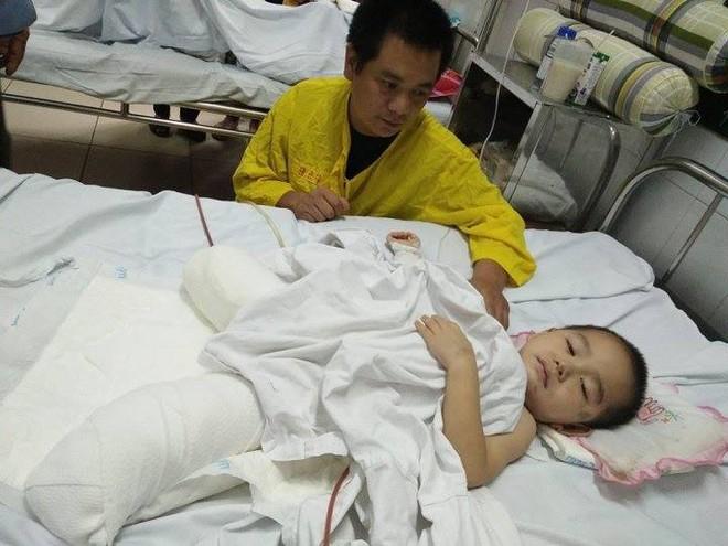 Bé trai 4 tuổi bị cụt chân do đá tảng lăn xuống nhà đè nát đôi chân đã qua cơn nguy kịch - Ảnh 2.
