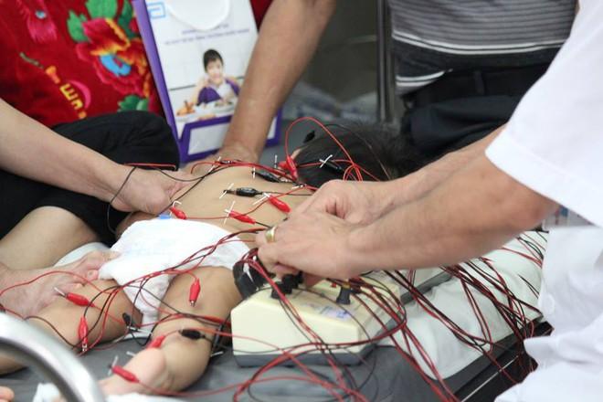 Hà Nội: Mỗi ngày có hàng chục trẻ em, người lớn nhập viện vì méo mặt do lạnh kéo dài - Ảnh 3.