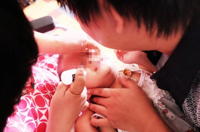 Bà vắt chanh vào mắt trị ghèn, bé trai 15 ngày tuổi bị loét giác mạc nghiêm trọng - Ảnh 2.