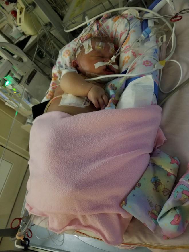 Chỉ vì một nụ hôn của người lạ, bé gái 18 ngày tuổi đã chết vì lây nhiễm virus viêm màng não - Ảnh 2.