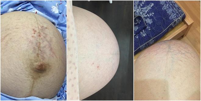 Mẹ 9x kể về hành trình mang thai ba: Quyết định giữ lại cả ba con dù bác sĩ nào cũng khuyên bỏ bớt - Ảnh 3.