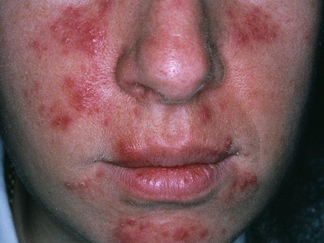 3 bệnh phổ biến ở da mà chị em nào cũng sợ gặp phải và cách xử lý để có làn da khỏe mạnh, xinh đẹp - Ảnh 4.