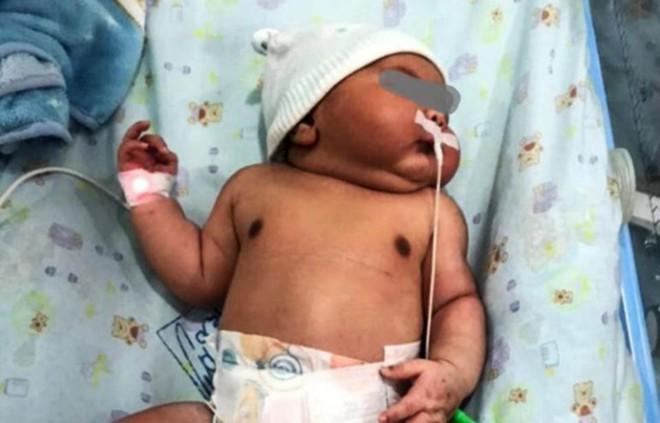 Bác sĩ đã dự đoán trước nhưng bà mẹ vẫn sốc khi sinh con ra lại thế này - Ảnh 3.