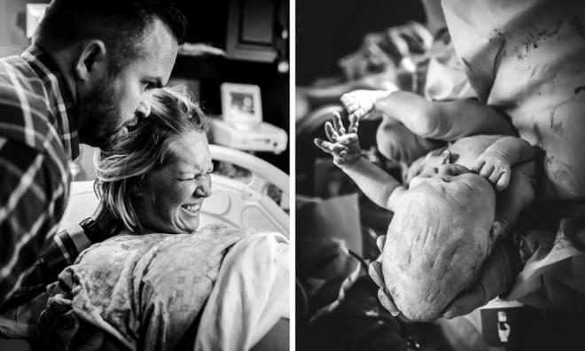 Kinh ngạc trước hình ảnh bé sơ sinh có đầu dài bất thường khi chào đời - Ảnh 1.