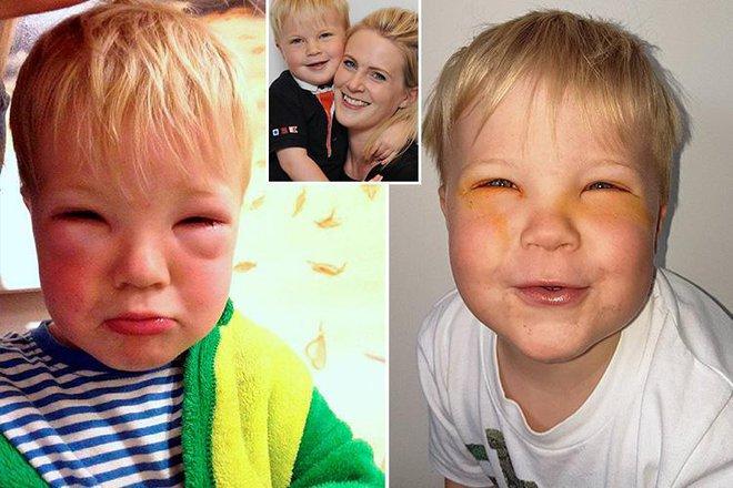 Bé trai 2 tuổi bị mù tạm thời vì mẹ nhuộm tóc - Ảnh 1.