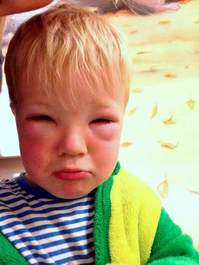 Bé trai 2 tuổi bị mù tạm thời vì mẹ nhuộm tóc - Ảnh 2.